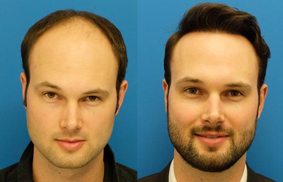 greatest hair transplant