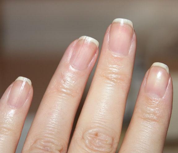 nail fungus drops