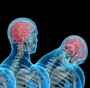 concussion management physiotherapy